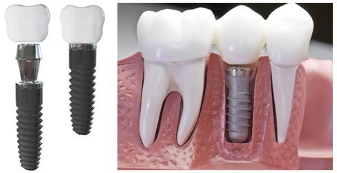 aaa274810526d Импланты Зубов Отзывы Вред Противопоказания Фото
