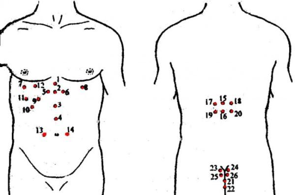 Точки на теле человека для лечения простатита